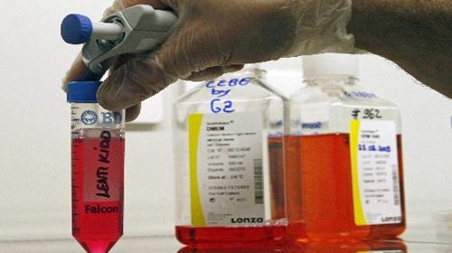 Kan Grupları Ortadan Kalkıyor