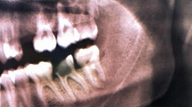 6500 yıllık diş dolgusu bulundu