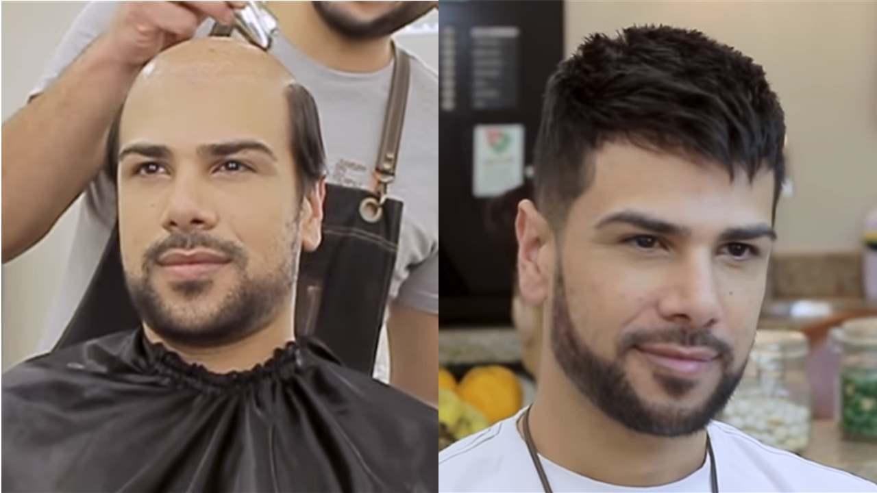 Protez Saç(Yapıştırma Saç) Nedir?