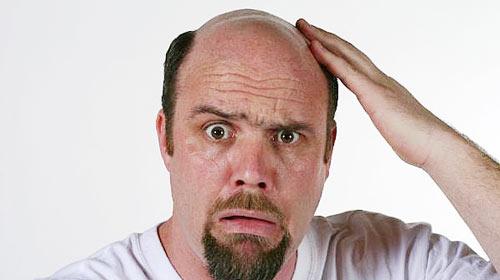 Saç dökülmesine karşı 10 öneri