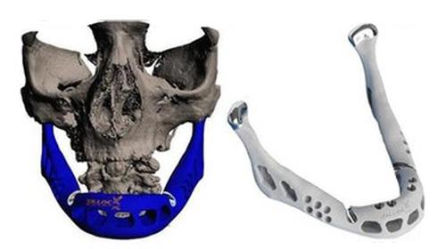 Dünyada İlk: 3D Yazıcıdan Kemik Nakli