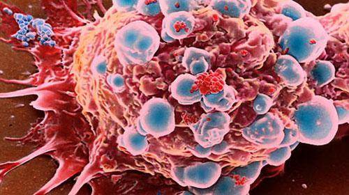 Tümör Hücresi Kanser Kök Hücresine Dönüşebilir